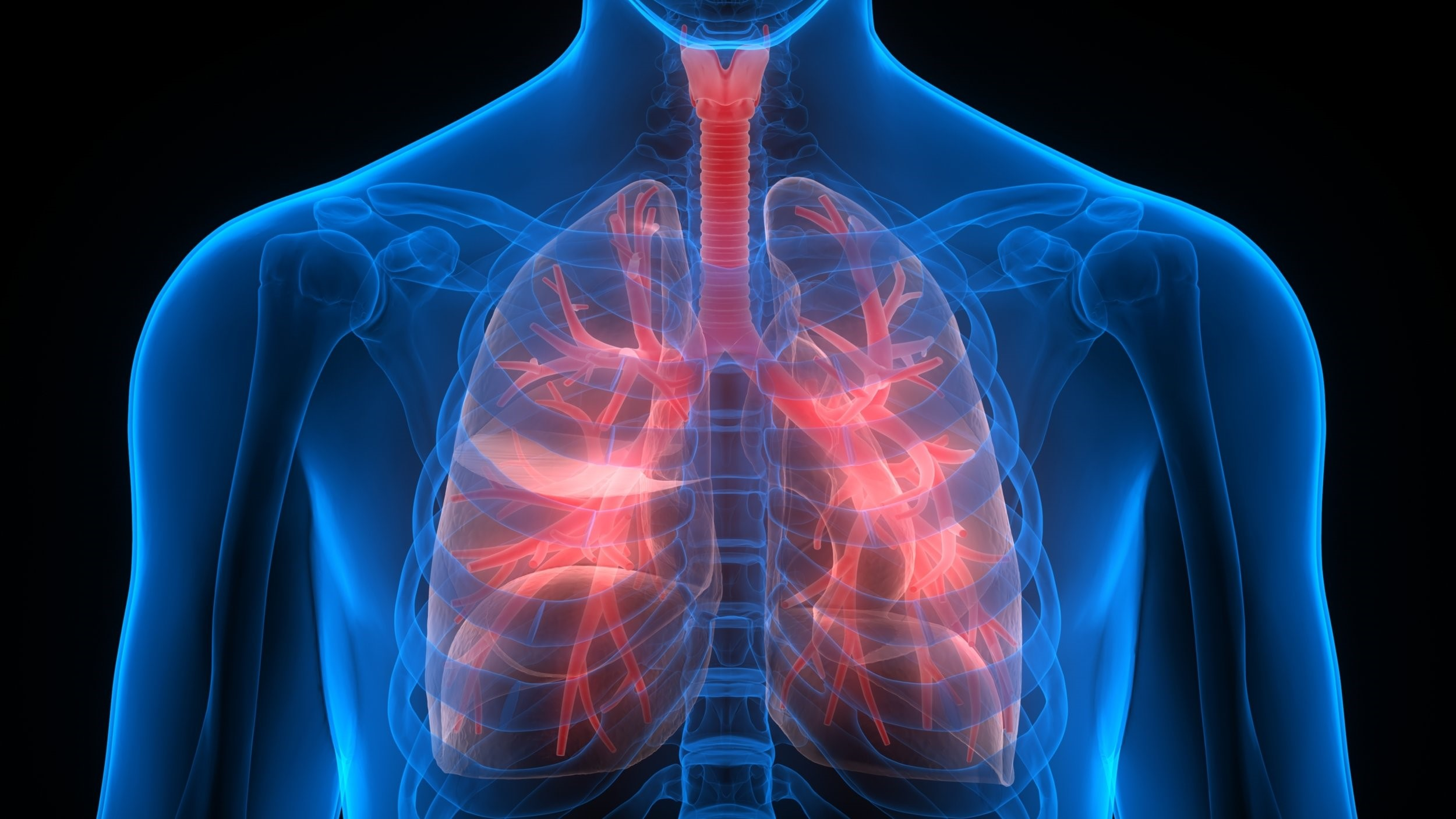 Nanoparticles help to fight lung cancer - Codex international